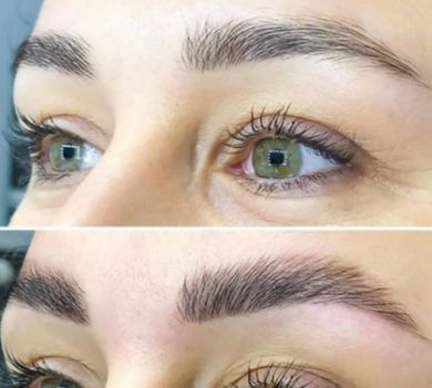 before and after brow treatment
