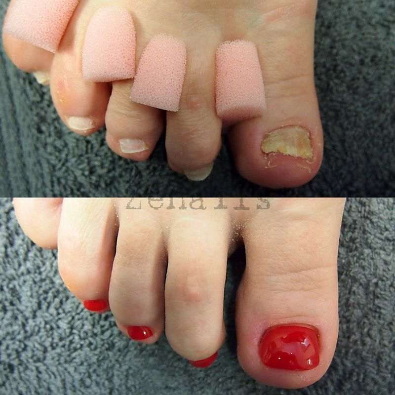 before and after pedicure