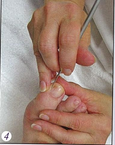 cleaning the toe nails